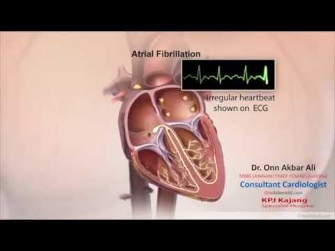 Normal Heart Rhythm and Atrial fibrillation