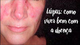 Lúpus: como viver bem com a doença