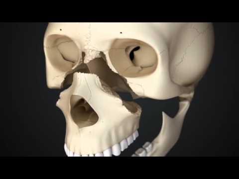 Перелом костей лицевого черепа по Ле Фору.