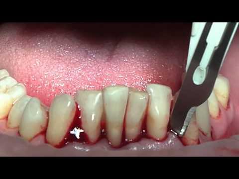 Хирургическое пародонтологическое лечение. Базовый курс. Часть 8