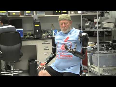 VIDEO: První člověk, který ovládá své paže pomocí mozku!