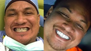 Youtube Video New Epic Smile Makeover Bil Veneers - Brighter Image Lab - Hawaii