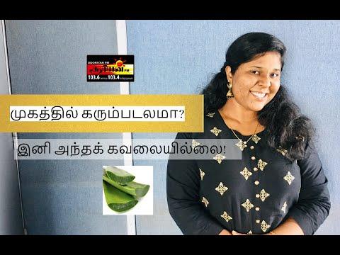 முகத்தில் கரும்படலமா? இனி அந்தக் கவலையில்லை! | Sooriyan FM | Gobigaa Alagaratnam