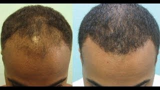 Video Try This Hair Loss Treatment To Stimulate Hair Regrowth MP3, 3GP, MP4, WEBM, AVI, FLV November 2018