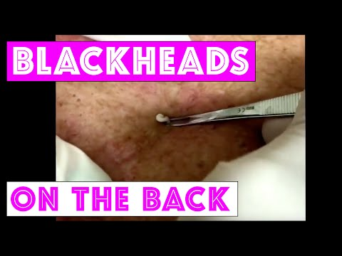 Dr Sandra Lee Extracting blackheads on the back