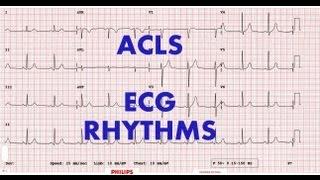 Video ACLS - ECG rhythm recognition & management, Part 1 MP3, 3GP, MP4, WEBM, AVI, FLV November 2018