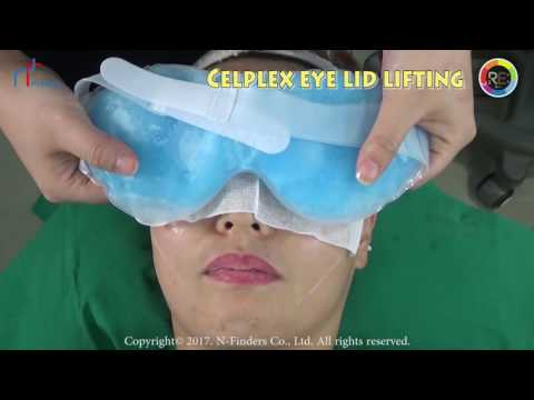 Celplex Plasma device for eye lid lifting and fine wrinkle removal