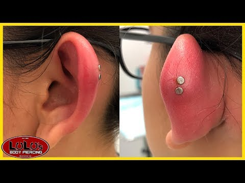 We Have Never Seen A Piercing This Swollen!!