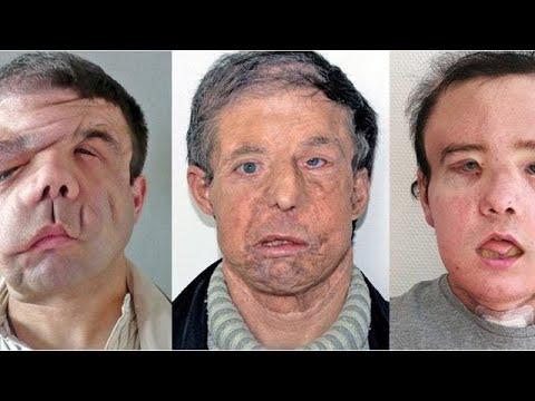 Gesichtstransplantation: Der Mann mit den drei Gesich ...