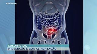 Boa alimentação ajuda na prevenção de câncer de colorretal