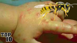Video Top 10 Insects You Don't Want To Get Stung By MP3, 3GP, MP4, WEBM, AVI, FLV Desember 2018