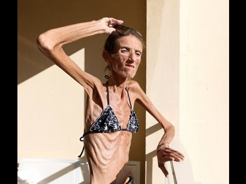 Worlds Skinniest Woman & Fattest Man Alive! Amazing! O'Gosh!!!