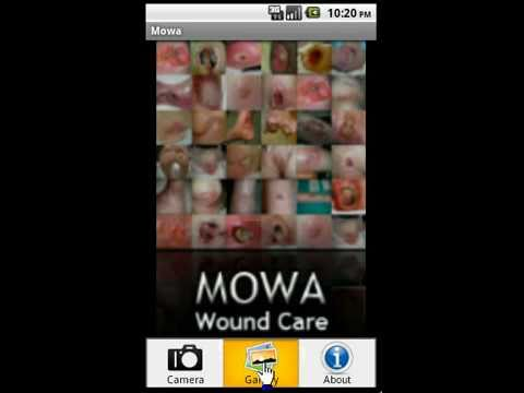 Video of MOWA – Wound Care Solution