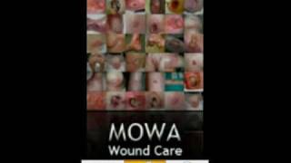 MOWA – Wound Care Solution YouTube video
