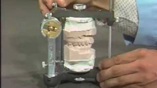 Occlusal Adjustment Of Mounted Cast