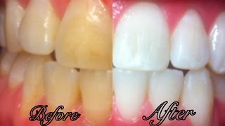 Video How To Whiten Teeth at Home in 3 Minutes - SIMPLE MP3, 3GP, MP4, WEBM, AVI, FLV November 2017