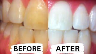 Как да избелим зъбите си само за 3 МИНУТИ!