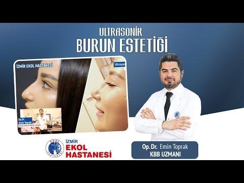 Ultrasonik Burun Estetiği - Opr. Dr. Emin Toprak - İzmir Ekol Hastanesi