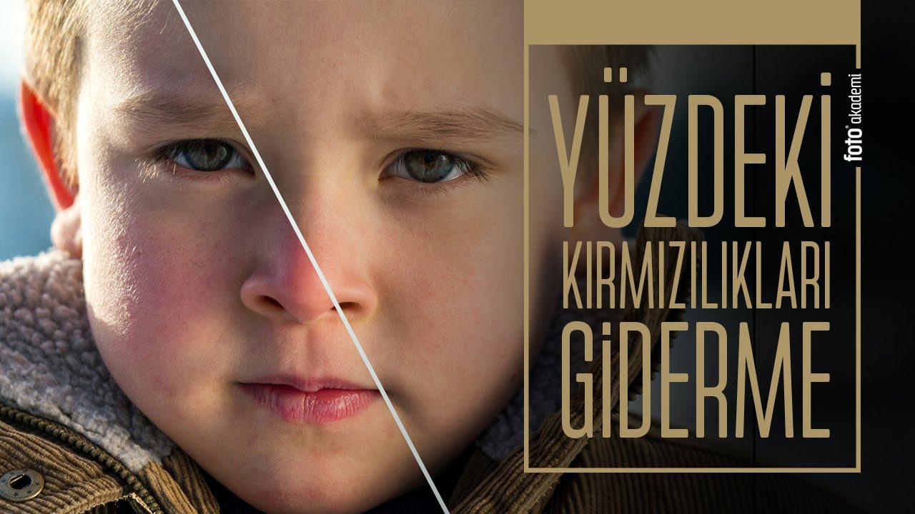 Photoshop' ta Yüz Kızarıklıklarını Gidermenin En Kolay Yolu (Kırmızı Yüz Renk Doğrulama)