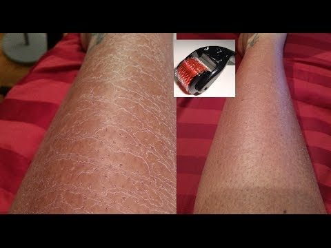 My Derma Roller review And results HAPPY NEW YEAR 2014!!