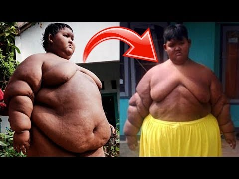 The World's Fattest Boy Has Lost 70lbs After Life Saving Surgery