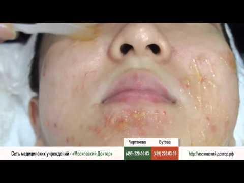 Аллергическая реакция кожи на крем