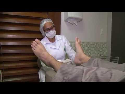 Rachaduras nos pés: conheça causas e tratamentos