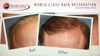 Hair Restoration Surgery Before and After Natural Results by Dr. Kahen