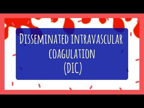Disseminated Intravascular Coagulation (DIC) for Nursing Students