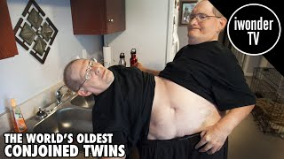 Video The Worlds Oldest Conjoined Twins Ronnie and Donnie Galyon MP3, 3GP, MP4, WEBM, AVI, FLV Januari 2019