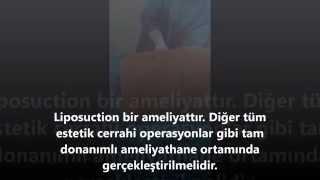 ERKEKLERDE LIPOSUCTION-LİPOSAKŞIN ESTETİĞİ | ANTALYA İSTANBUL