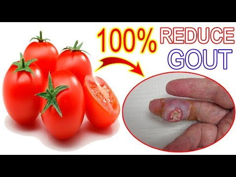 The Best Food For Gout Naturaly – Tomato Is Amazing Fruit To Reduce Uric Acid | Perfect Health 365