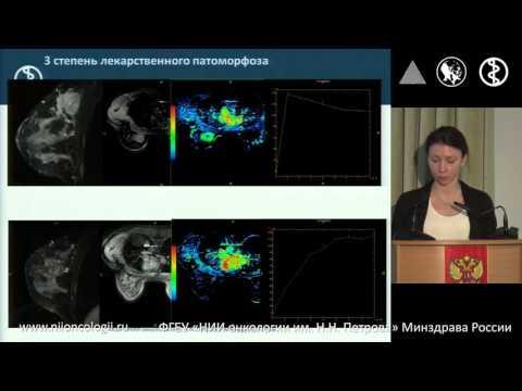 МРТ с динамическим контрастированием и ДВИ в оценке эффективности лечения рака молочной железы