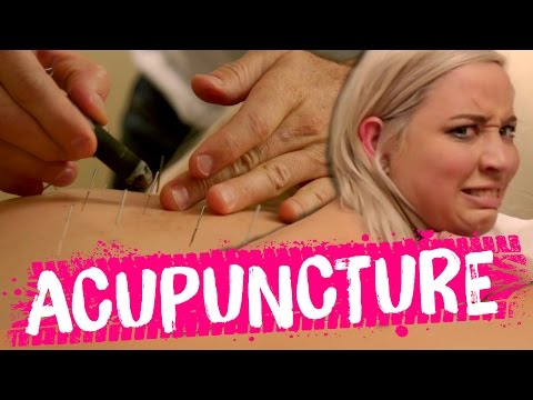 Acupuncture MIRACLE?! (Beauty Trippin)