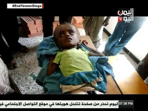 Yemen Today Channel English News 23-4-2017