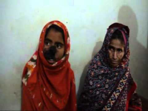 IN DURUG BOLUCHSTAN A MAN CUT NOSE HER WIFE.