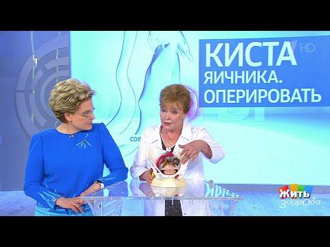 Жить здорово Совет за минуту: киста яичника.(14.06.2018) - DomaVideo.Ru