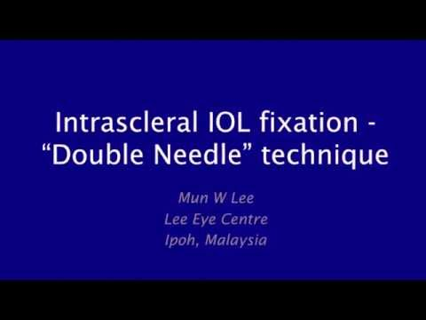 Video Intrascleral IOL fixation - Double Needle Technique download in MP3, 3GP, MP4, WEBM, AVI, FLV January 2017