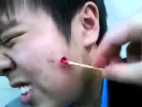 GROSS pimple cyst popping explosion extraction