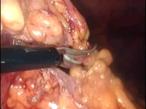 laparoscopic treatment of diverticulitis