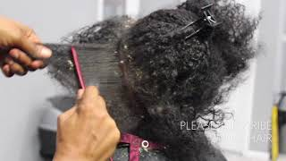 Video Picking BIG scalp flakes Psoriasis and Dermatitis SEW IN WEAVE REMOVAL MP3, 3GP, MP4, WEBM, AVI, FLV Februari 2019