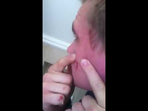 Big pimple on face popped