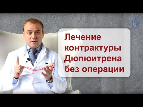 Лечение контрактуры Дюпюитрена без операции