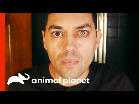 Parasite Feeds Off Man's Eye | Monsters Inside Me