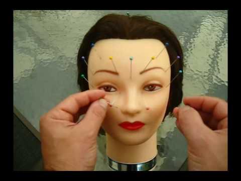 Acupuncture Demo – Bells Palsy, Trigeminal Neuralgia, TMJ, Tinnitus