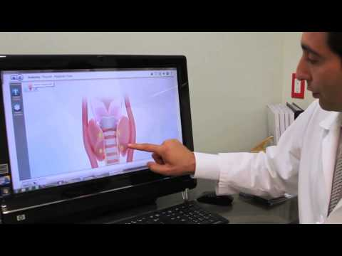 video:Minimally Invasive Parathyroid Surgery | Babak Larian, MD, FACS