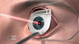 16x9 - 20/20 Hindsight: Laser eye surgery investigation