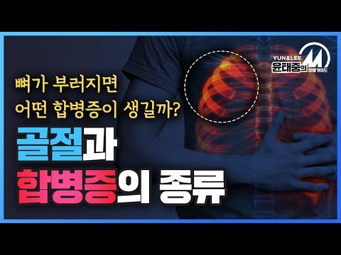 [윤태중의 M 장해 가이드] 교통사고 외상으로 발생할 수 있는 합병증