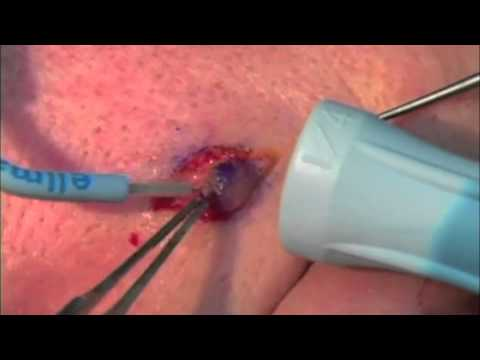 Dermatology: Lesion Removal (Elliptical Excision)