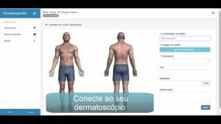 Dermatologia Web – Software para Dermatoscopia Digital